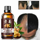 20/30ml Fast Hair Growth Pilatory Essence Human Hair Oil Anti Hair Loss Liquid $3.89 USD on eBay