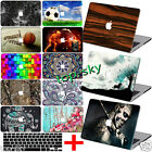 """Customize Paint Hard Case +FREE kb Cover For Macbook Pro Air 11""""13""""15""""Retina 12"""""""