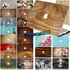 """Wood Custom Paint Rubberized Hard Case Cover For Macbook Air Pro 13""""15""""12""""11""""+KB"""