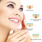 Acne Patch & Skin Tags Beauty Set Remover Pimple Master Patch Treatment F5Hw