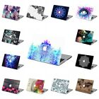 "2in1 Pretty Painted Rubberized Hard Case Cover For Macbook Pro 13"" 15"" Touch Bar"