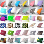 "Marble/ Glossy/ Quicksand Matte Hard Case Protective Skin for MacBook 12"" Retina"