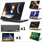 """3in1 Universe Galaxy Paint Hard Case Shell for MacBook 12"""" Air Pro 11"""" 13"""" 15"""""""
