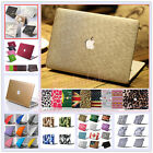 "Leather Matte Quicksand Hard Case Cover for Apple MacBook 12"" Air Pro 11"" 13""15"""