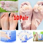 20Pcs Exfoliating Peel Foot Masks Baby Soft Feet Remove Callus Hard Dead Skin