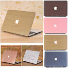 """Leather Coated Bling Wood Marble Case for MacBook Air Pro 13"""" 15""""-Release 2016"""