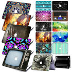 "Unique Patterned Hard Case +KB+SP Cover for Macbook Pro 13"" 13.3"" CD-ROM Retina"