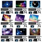 "4in1 Galaxy Painted Matte Hard Case Key Anti Dust For Macbook Pro Air 11 13"" 15"""