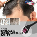 Hair Regrowth Micro-needling Roller FREE SHIPPING Anti Hair Loss Treatment