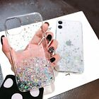 For Iphone 11 11 Pro Max Se 2020 8 7 Case Slim Bling Glitter Clear Girly Cover