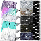"Painted Marble Hard Laptop Case Cover For Macbook Pro Air 11""13""15"" Retina 12"""