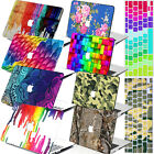 Laptop Accessories Printing Hardshell Case for Macbook Air Pro 11 12 13 15 +KB
