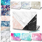"""Rubberized Laptop Hard Marble Printed Case cover For Macbook Air 11""""12 Pro 13""""15"""