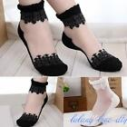 Gorgeous Lace Ruffle Ankle Socks Women Ultrathin Sheer Silk Cotton Elastic Socks