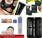 Blackhead Extractor Tool Nose Mask Acne Facial Peel Off Face Mask Electric clean