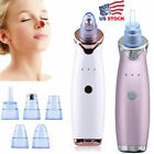Внешний вид - Face Facial Pore Blackhead Remover Derma Vacuum Suction Diamond brasion Clean