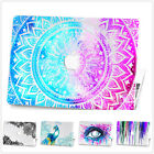 "Bing Shiny Glitter Hard Case+Keyboard Cover For Macbook Pro 13""15""Retina Air 11"""