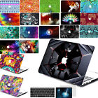 "Pattern paint Hard Case Cover for laptop Macbook Pro 13""15""Retina Air 13""11""12""E"