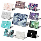 """Marble Stone Prints Hard Paint Case Cover For Macbook Pro Air 11 13""""15""""Retina 12"""