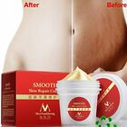 Smooth Skin Repair Cream Mommy Skin Prenatal Development Stretch Marks Removal on eBay