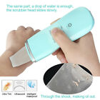 Portable Skin Scrubber Ultrasonic Ultrasound Facial Peeling Cleaner+USB Charging