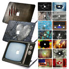 "Vintage Pattern Matte Hard Case Cover +KB +SP for Macbook Pro 13"" CD-ROM Retina"