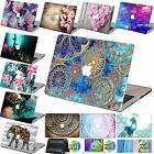 "Rubberized HARD case personal Painting Cover gift Fr Macbook Air Pro 11""12""13""15"