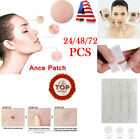 72PCs Skin Tag & Acne Patch - NEW Hydrocolloid Acne and Skin Tag Remover Patches $6.49 USD on eBay