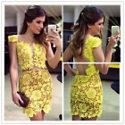 2014 Womens Lace Dress Perspective Nightclub Backless Slim Package Hip Skirt - S