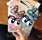 Shining Bow knot Big eyes Phone Case Cover Glitter Heart Water Liquid Quicksand