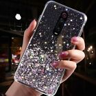 For Xiaomi Mi Note 10 Plus 9 Redmi Note 8 Pro Bling Star Case Soft Clear Cover