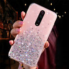 For Xiaomi Redmi 7A Note 9S 8 7 6 Pro Case Glitter Crystal Clear Soft Gel Cover
