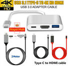 For Apple Macbook 3 in 1 Type C USB-C Hub Adapter Cable 4K HDMI USB 3.0 UK