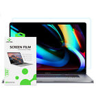 LENTION Ultra HD Screen Protector Cover Skin for New MacBook Pro Air 13 15 16