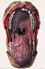 ML19 Vintage 1800's Medical Mouth & Tongue Surgical Anatomy Poster RePrint A2/A3