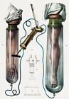 ML14 Vintage 1800's Medical Junods Ventose Surgical Poster Re-Print A4