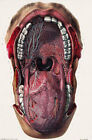 ML19 Vintage 1800's Medical Mouth & Tongue Surgical Anatomy Poster Re-Print A4
