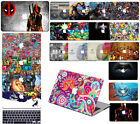 "Laptop Cool Painted Hard Case+Keypad Cover For Macbook Pro Air 11""13""15Retina 12"