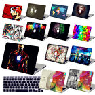 """Special Pattern Printing Hard Case Cover For 2016 New Macbook Pro 13""""/Air/Retina"""