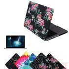 "MacBook Pro 13"" Retina Case Hard Shell Cover Designer Pattern + Screen Protector"